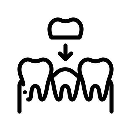 Stomatology Tooth Crown Vector Thin Line Sign Icon. Crown Dentist, Instrument Tool Equipment And Device Linear Pictogram. Medical Treatment Therapy Dentistry Monochrome Contour Illustration