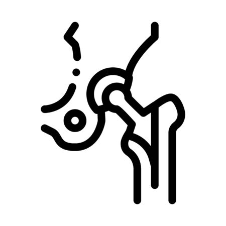 Hip Implant Replacement Biomaterial Vector Icon Thin Line. Biology And Science Flasks, Bioengineering, Dna And Medicine Biomaterial Concept Linear Pictogram. Monochrome Contour Illustration