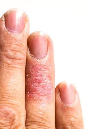 Eczema dermatitis allergic skin rash closup region on adult finger. Isolated white background.