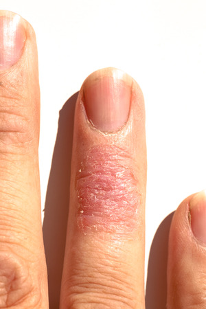 rash: Eczema dermatitis allergic skin rash closup region on adult finger. Isolated white background.