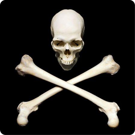 huesos: Cr�neo humano real con huesos de srossed