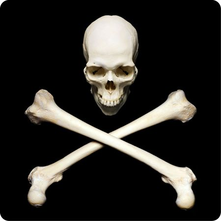 skull with crossbones: Real human skull with srossed bones