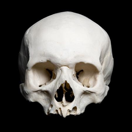 cr�nes: r�elle cr�ne humain. La moiti� sup�rieure. avec un fond noir