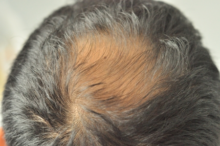 scalp: hair loss Stock Photo