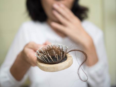female head: Problema de pérdida de pelo