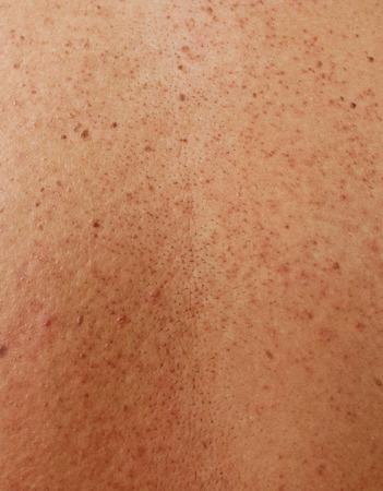 pus: Ragazza con la pelle e cicatrici da acne problematici nella parte posteriore Archivio Fotografico