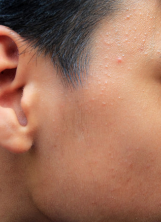Boy with oily skin and acne scars photo