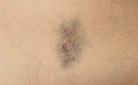 hematoma: Closeup Bruise on wounded womans leg skin