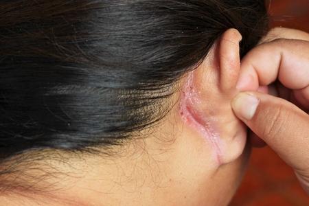 귀 뒤의 상처 스톡 콘텐츠