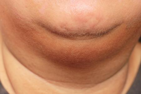 그녀의 뚱뚱한 두 번째 턱을 가진 여자 스톡 콘텐츠
