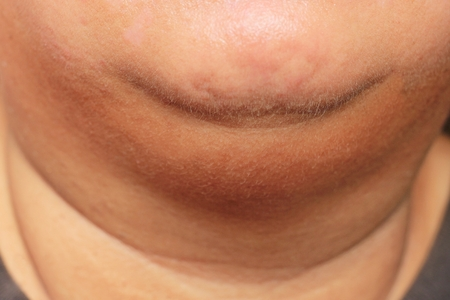 woman with her fat second chin