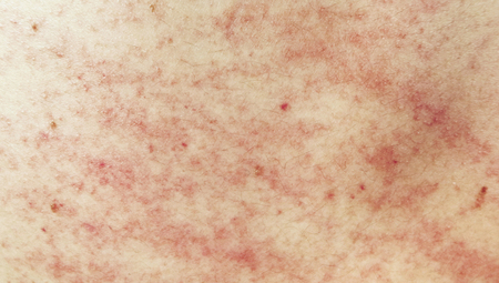 Rash on sensitive skin or skin problem with allergy rash Stock Photo