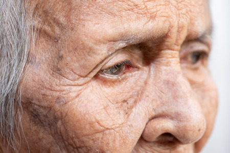 The old womans felling lonely.(dementia and Alzheimer's disease) Imagens