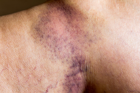 bruise: Closeup on a Bruise on wounded old woman leg skin