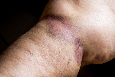 throbbing: Closeup on a Bruise on wounded old woman leg skin