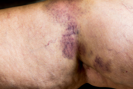 seeping: Closeup on a Bruise on wounded old woman leg skin