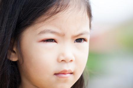 Closeup of asian child girl eye swell from bacteria virus
