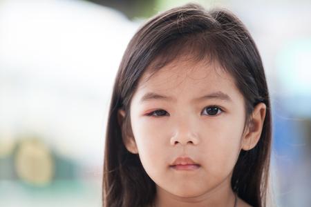 Gros plan d & # 39 ; une fille asiatique oeil oeil de la douleur du cancer des organes Banque d'images - 88458338
