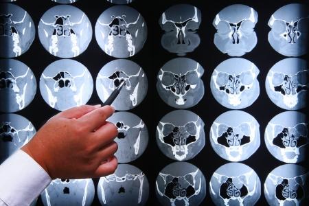 magnetyczny rezonans objawów piersi.