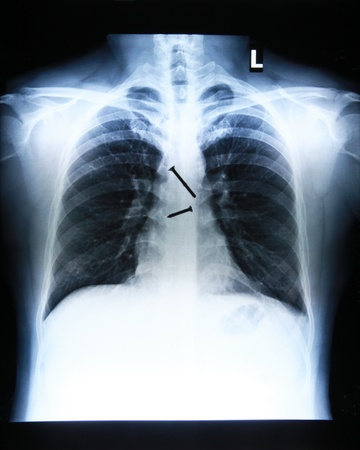 x-ray image of Screws in the esophagus of the body. photo