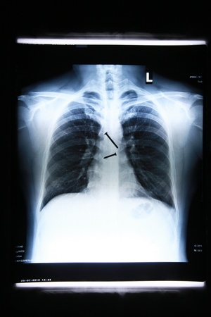 x-ray image of Screws in the esophagus of the body. Stock Photo - 11271261