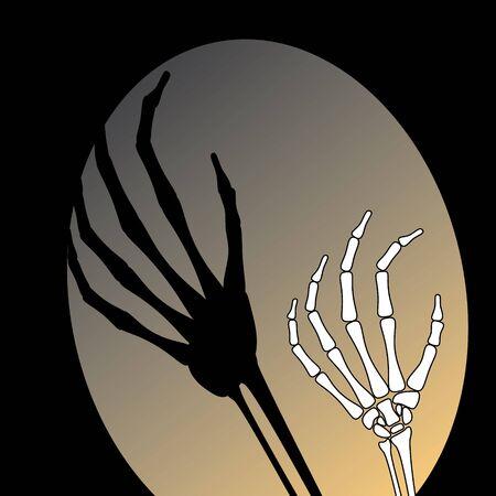rheumatism: White hand bone with shadow in black background