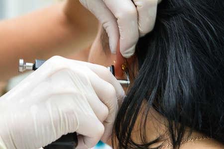 pierced ears: Puncture of the ear