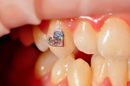 Photo of dental jewellery on tooth. Stock Photo