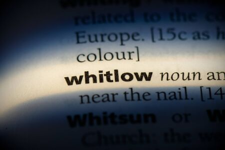 whitlow word in a dictionary. whitlow concept, definition. 写真素材