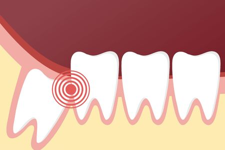 Flat toothache and dental problems concept