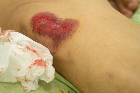 rash: La erupci�n del camino