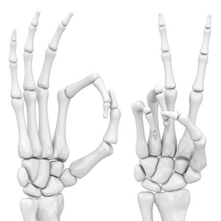 radiography: hand