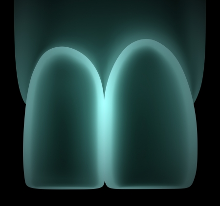 degeneration: 3D X-Ray image of teeth or tooth close up illustration