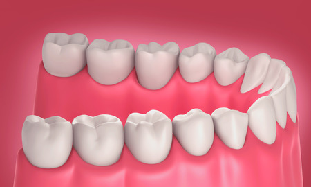 periodontal: 3D teeth or tooth illustration, side view