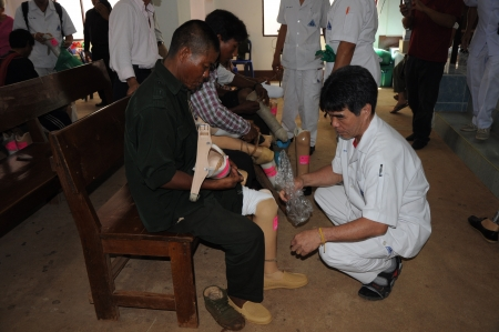 Chiang Dao district, Chiang Mai province,May 4 2012,prostheses foundation mobile unit service Editorial