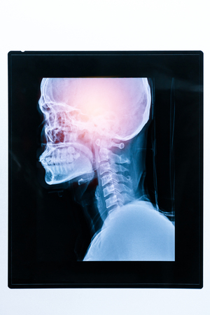 Medical X ray image of patient head and skull. Healthcare concept. Stock Photo