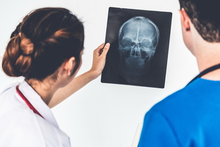 Female doctor looking at x ray film of patient head injury while working with another doctor at the hospital. Medical healthcare staff and doctor service.