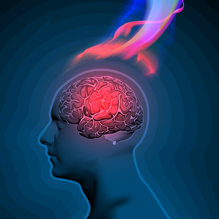 memory drugs: Abstract Vector Illustration of Headache with Flames