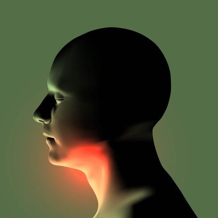 Human throat irritation. Health care concept design. Sore throat. Laryngitis vector illustration