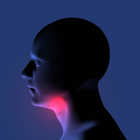 Laryngitis vector illustration. Human throat irritation.