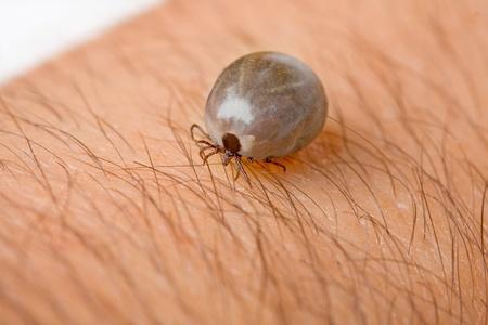 Detail tick - parasite on leather of man (Rhipicephalus sanguineus)