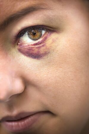 battered woman: Close Up of eyes of a woman domestic violence victim Stock Photo