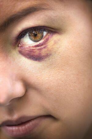mujer golpeada: Hasta cerca de los ojos de una mujer víctima de violencia doméstica