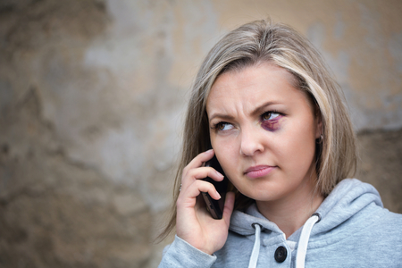 mistreatment: Scared woman with bruise on face calling to get help