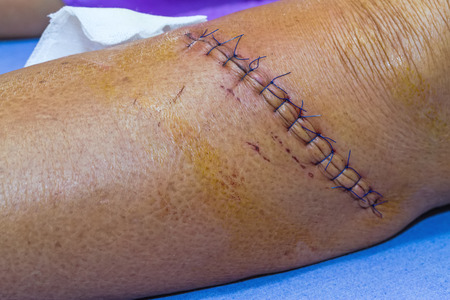 to wound: cicatriz de sutura operación con una fibra azul en la pierna del paciente