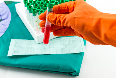 ampule: Hand with latex glove holding blood sample vial in front of blood test form and blue  medical uniform Stock Photo