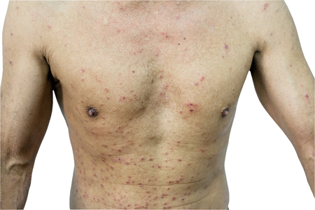 Close up A man and papule rash in body on white background.Saved with clipping path.