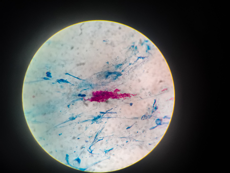Close up gram stain test showing bacteria cells of Tuberculosis bacteria gram positive  on sputum.
