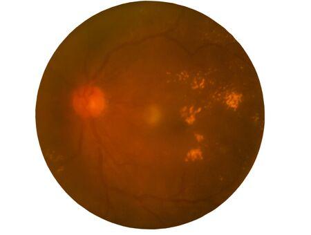 Retina of diabetes , diabates retinopathy,photo Medical Retina Abnormal (cataract) isolated on white background.