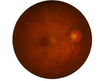 Retina of diabetes , diabates retinopathy,photo Medical Retina Abnormal isolated on white background.